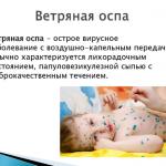 Анкета «Проведение профилактических прививок для предупреждения ветряной оспы»